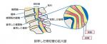 脊柱管狭窄