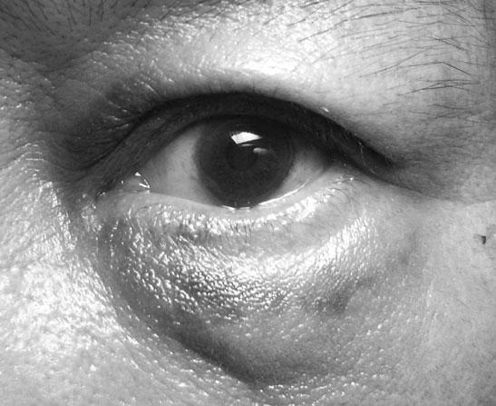 5日目の負傷した眼