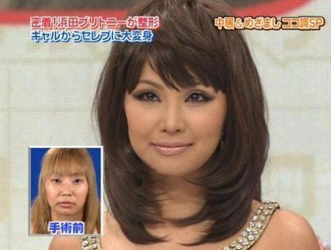 浜田ブリトニー 美容整形外科