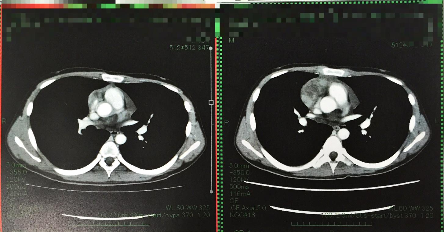 地固め療法1クール目CT 比較