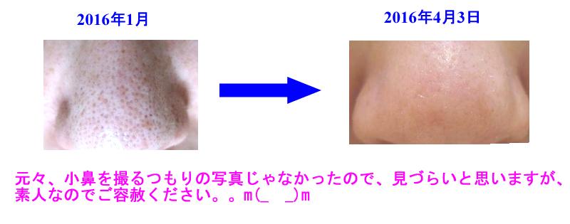kobana_beforeafter.jpg