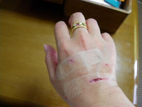 うー兄ちゃんにやられドラえもんのように腫れ上がった飼い主1号の手