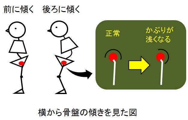 変形性股関節症と腰との関係