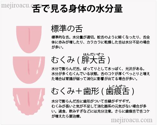 脾 歯痕舌 ギザギザ舌 脾・歯痕舌図・舌に歯形・歯形舌.ぎざぎざの舌・べろの歯形・ギザギザのベロ・しこんぜつ:歯痕舌図・歯痕
