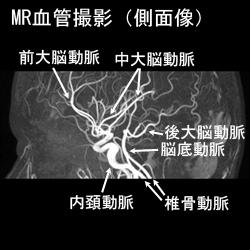 MR血管撮影側面