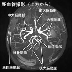 MR血管撮影(上方から)