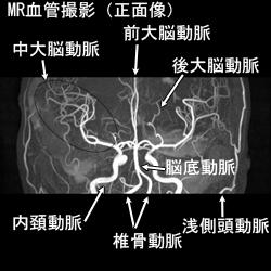 MR血管撮影正面
