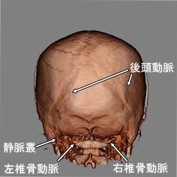 3D-CTA頭蓋外後方2
