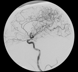 AVM2 angio post