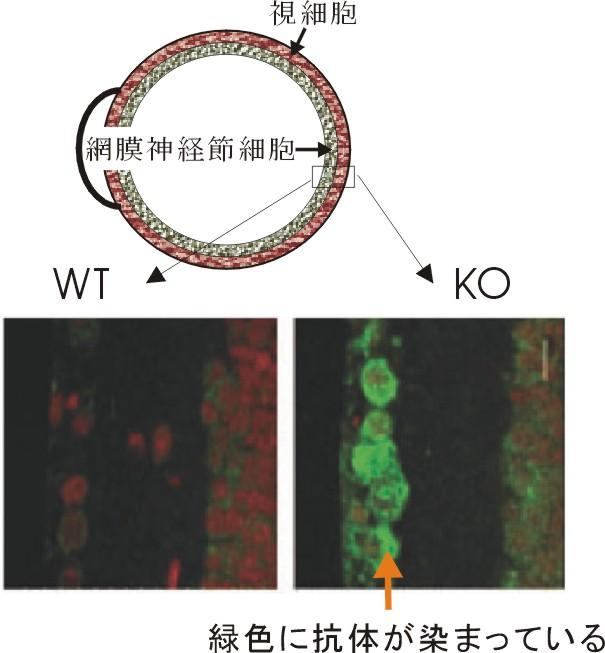 網膜細胞TakahashiNFKB