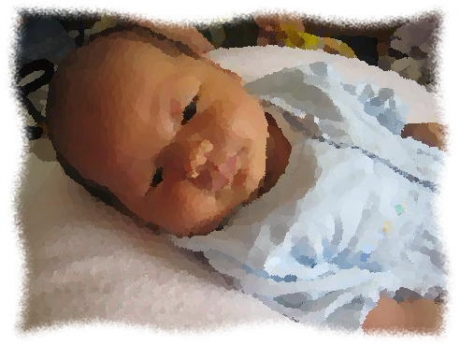 2016年6月22日母乳性黄疸
