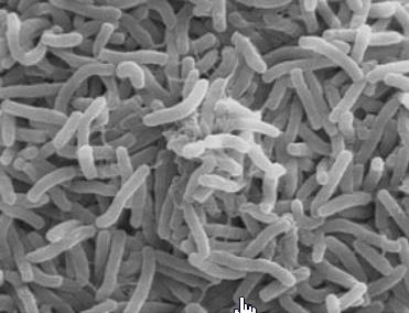 コレラ菌1