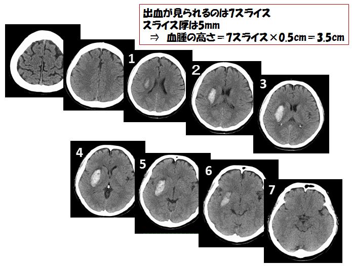 脳出血 簡単な出血量の算出方法 血腫の高さの求め方