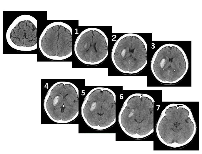 脳出血 簡単な出血量の算出方法 血腫の縦径の求め方1