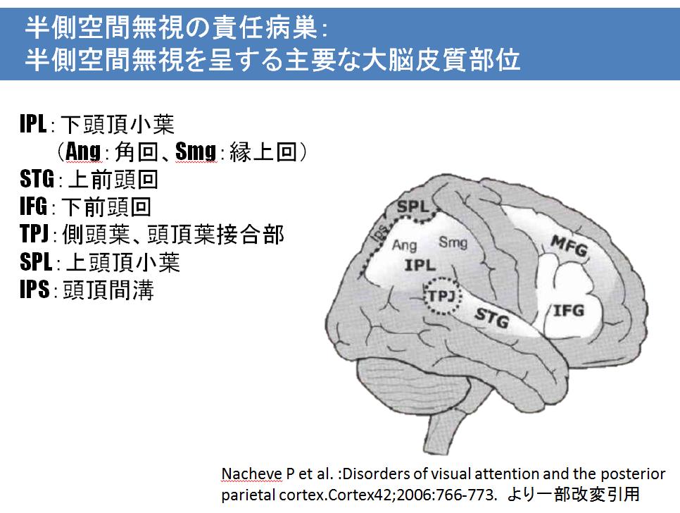 半側空間無視の責任病巣:Nachevらによる半側空間無視を呈する主要な大脳皮質部位