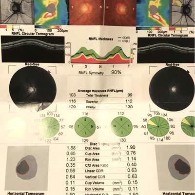 眼底三次元精密検査
