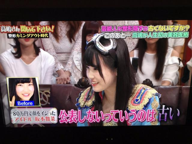【整形アイドル】仮面女子・坂本舞菜、8か所の整形告白 総額80万円「公表しないのは古い」