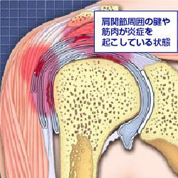 肩痛(>_<)