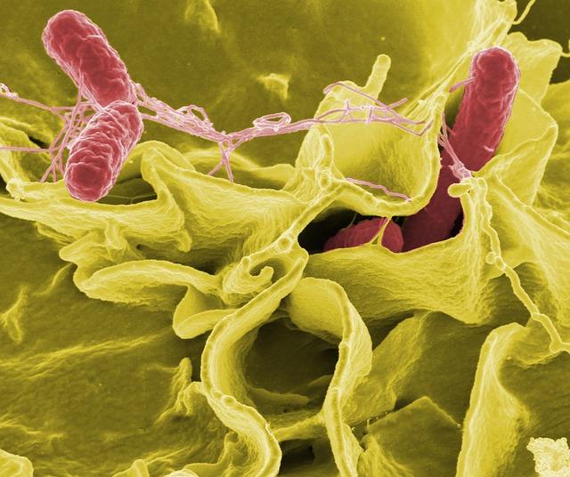 サルモネラ菌 顕微鏡写真